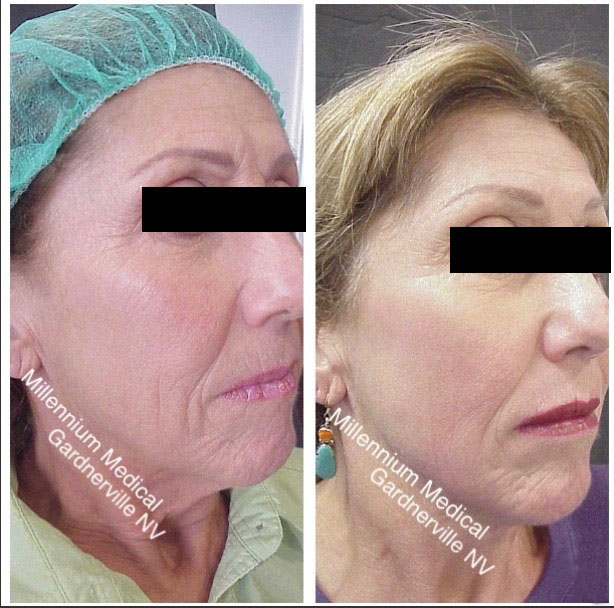 before and after co2 treatment right side of the face